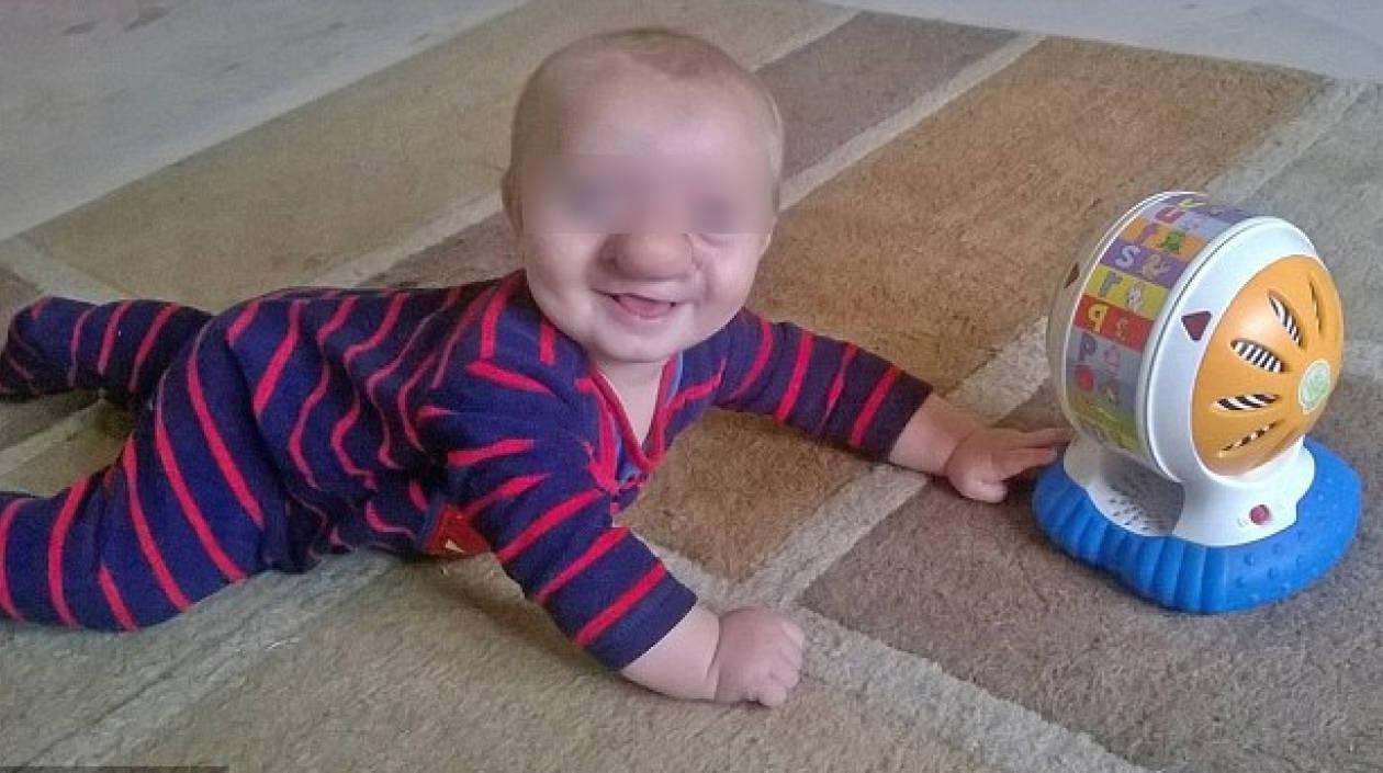 Ollie Trezise, el bebé que tiene parte de su cerebro en la nariz