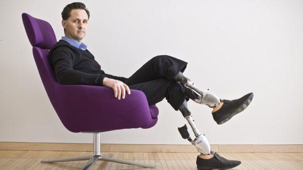 Hugh Herr, el hombre biónico con el secreto de la innovación