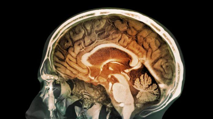 Contaminación en cerebros de personas en Ciudad de México
