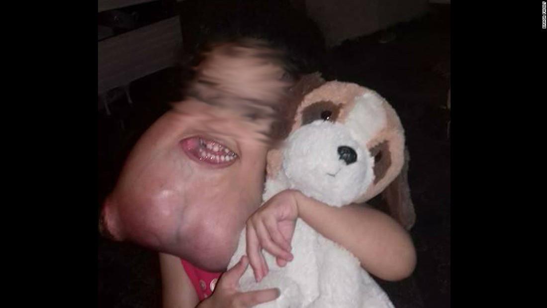 Remueven extraño tumor facial a niña brasileña