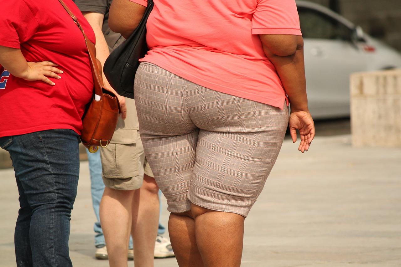 En Yucatán, 52 nuevos casos de obesidad por día