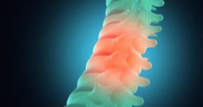 lesion-en-medula-espinal.-redes-600x330.jpg