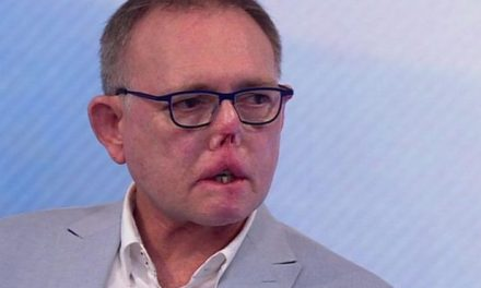 Perdió piernas, dedos y parte de la cara por arañazo y lametón de su perro