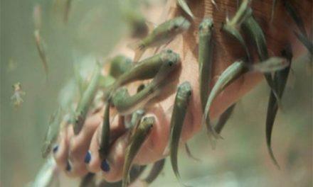 Pierde las uñas de los pies por hacerse pedicura con peces