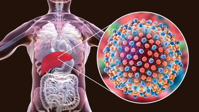 """Peligroso y silencioso: Hepatitis """"C""""; campaña gratuita en puerta"""