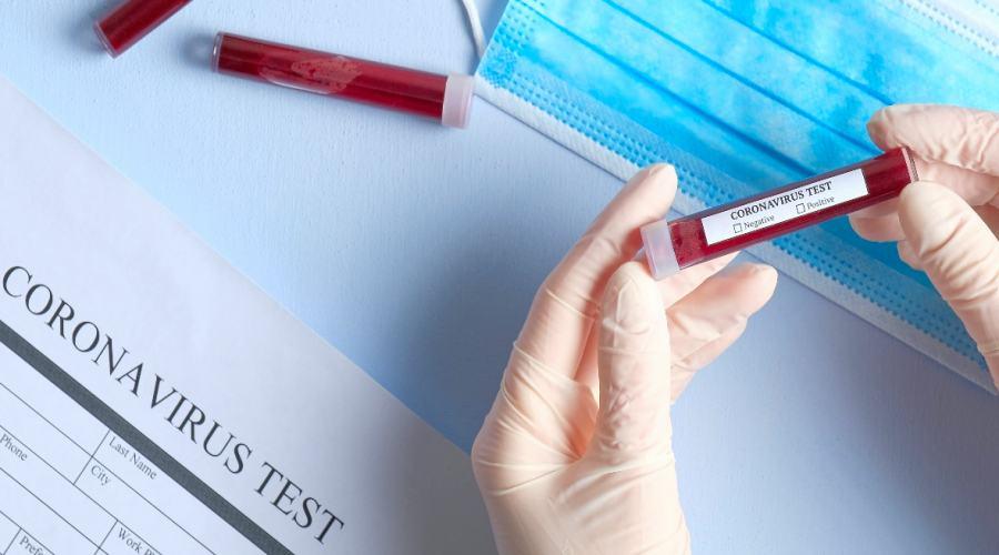 Coronavirus sigue expandiéndose: 13 yucatecos confirmados