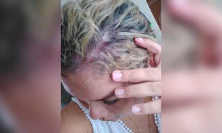 Difunden presunto ataque con cloro a química farmacobióloga en Mérida